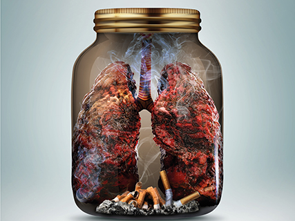 smoker's lung in a jar with cigarettes